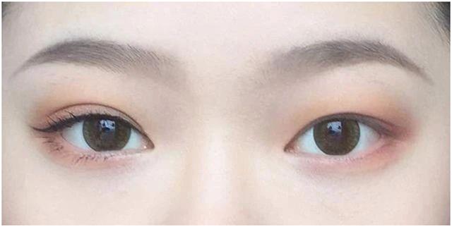 双眼皮不一定适合所有人,也不是越宽越好看